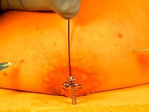 Needles In My Tit