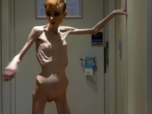 Anorexia Christin Showing Her Bones & Skinny Skeleton